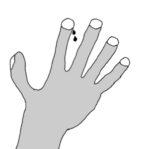 Nail-bite -- Illustration by Börkur Sigurbjörnsson